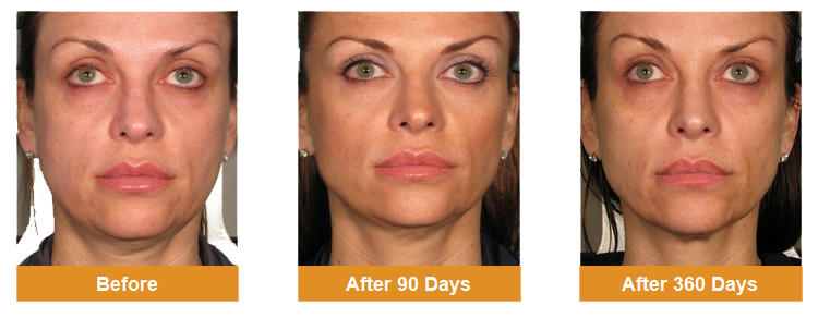 before-after-skin-ultherapy
