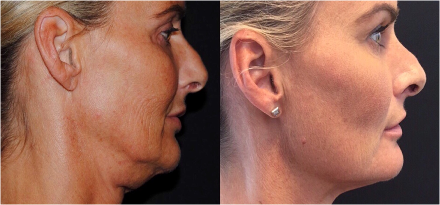 before-after-skinlift